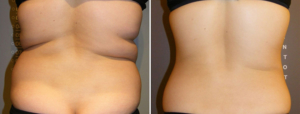 enCurve - getting rid of fat without surgery
