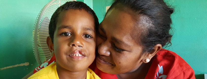 Interplast – Improving quality of life through plastic surgery. Iowane's Story – a 4yr old Fijian boy with a cleft lip