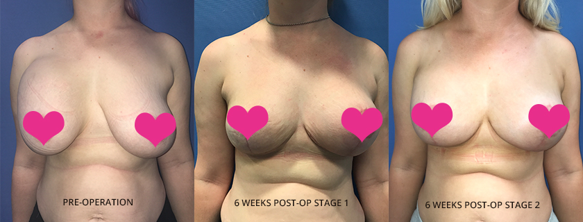 "Megan's warning to patients to ""Do Your Research"", her breast surgery story"