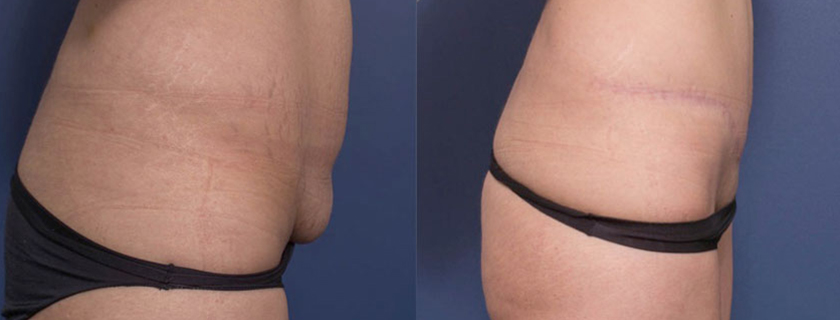 Body Contouring with Surgery – Removing Excess Skin