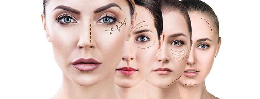 What's the difference between a Traditional Facelift and a Deep Plane Facelift?