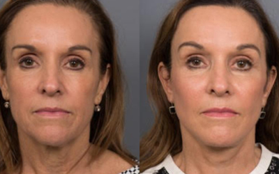 Jennifer's Facelift with Dr Bryan Mendelson
