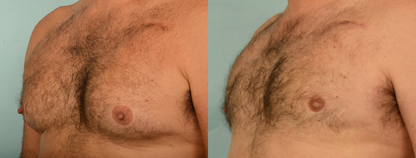 Gynecomastia – Male Breast Reduction and Male Breast Contouring