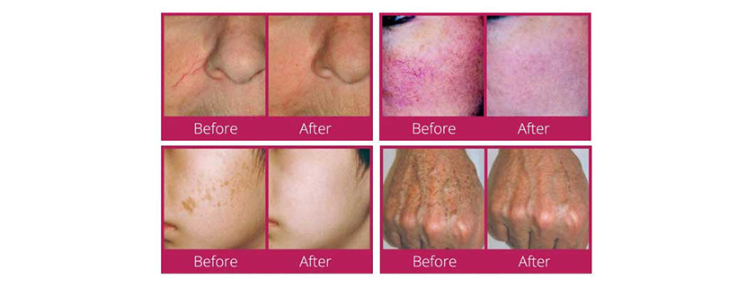 Treat a range of Skin Issues with IPL and Laser