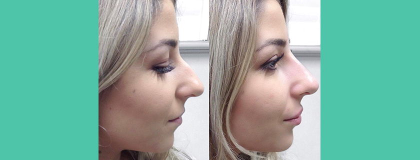 What is Non Surgical Rhinoplasty?