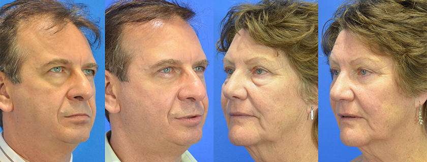 We talk Blepharoplasty, or Eye Surgery, with Dr Jayson Oates