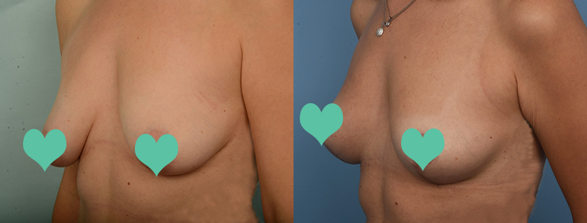 Laura's Lift – Breast Lift, Mastopexy