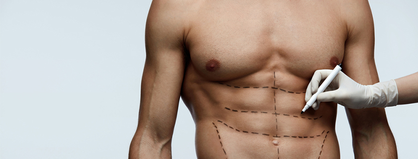 Men and Plastic Surgery – Which procedures and non-surgical treatments are most popular?