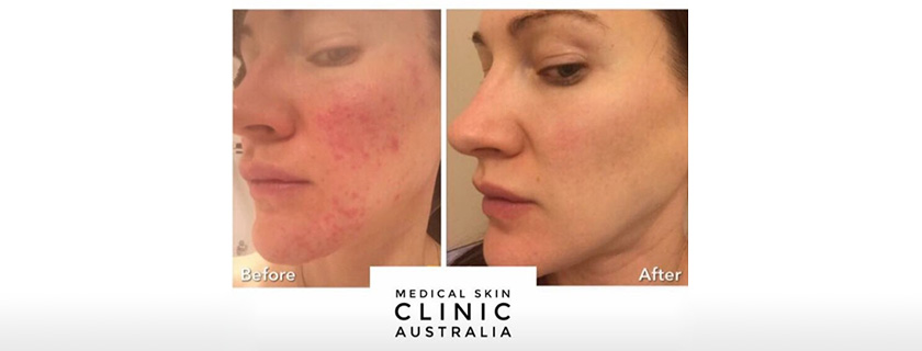 Do you have a permanently red or flushed face? It could be Rosacea…