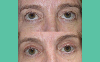 Lynn's Blepharoplasty and Brow Lift with Dr Craig Layt on the Gold Coast