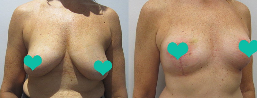 Jody's Breast Lift and Reduction