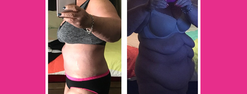 Kerrie's Weight Loss Journey and Skin Removal Procedures with Dr Amira Sanki