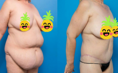 Chelle's Amazing Transformation with Dr Mark Magnusson