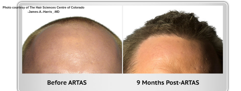ARTAS Hair Transplant – a solution for baldness and hair thinning