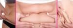 liposculpture liposuction
