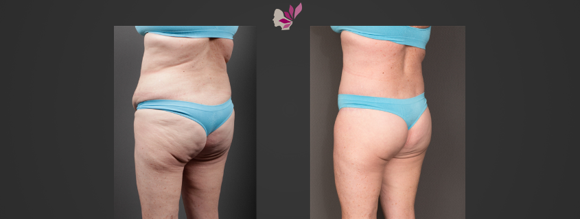 Thigh Lift and Butt Lift with Fat Transfer