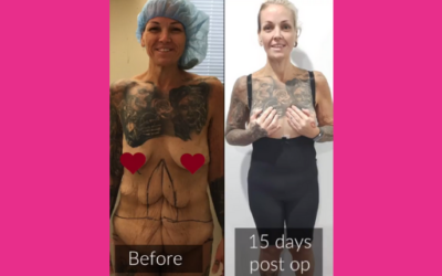 Complete Body Reconstruction after losing 98kgs