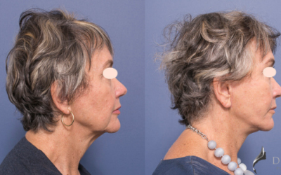Facelift and Necklift – When is the right time and is it right for me?