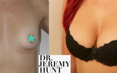 Elle's Breast Augmentation Surgery with Dr Jeremy Hunt in Sydney