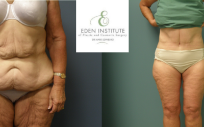 Amika's 60kg Weight Loss and Body Reno with Dr Mark Edinburg in Sydney