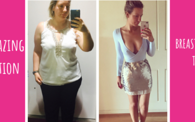 Lauren's Multiple Procedures Post Weight Loss