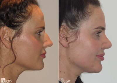 Rhinoplasty Recovery Time