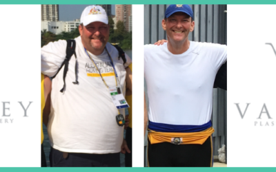 Paul's Massive Weight Loss and Belt Lipectomy