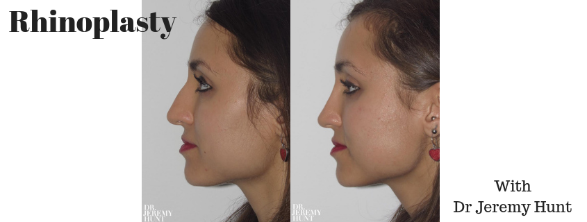 4 Best Rhinoplasty Surgery Case Studies performed by Dr Jeremy Hunt, Sydney Plastic Surgeon