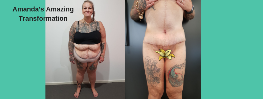 Amanda's Body Lift with Dr Justin Perron – we continue to follow her journey