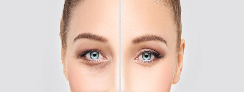 What To Expect During Eyelid Surgery Recovery