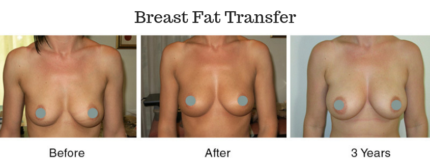 Breast Fat Transfer – the way of the future