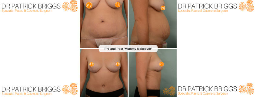 Mummy Makeover in Perth with Plastic Surgeon Dr Patrick Briggs