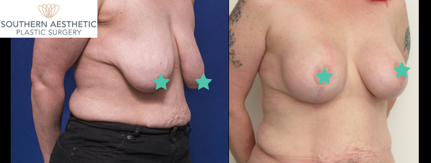Donna's Breast Augmentation, Tummy Tuck and Brachioplasty with Dr Amira Sanki