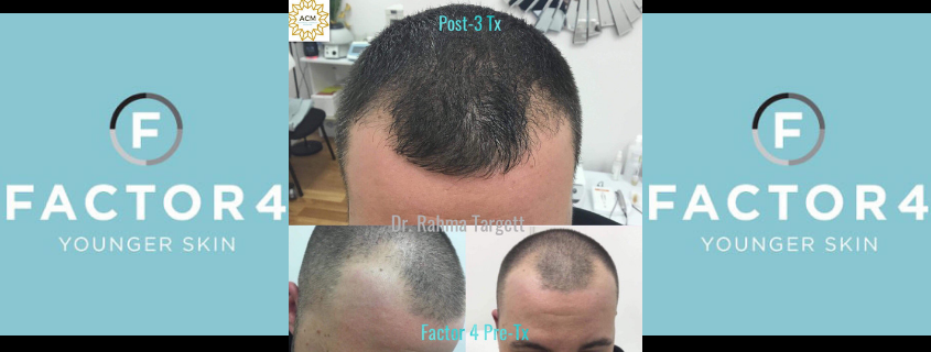 Results with Factor 4 – Treating hair loss, skin rejuvenation and more!