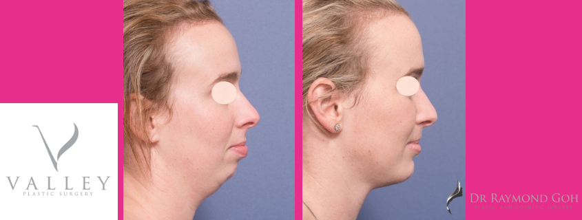 What is Genioplasty? – Chin Surgery Before and After Photos