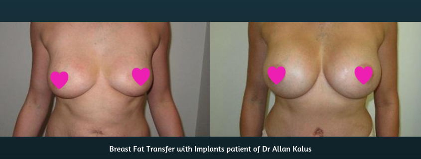 Implants AND Fat Transfer – The Hybrid Procedure