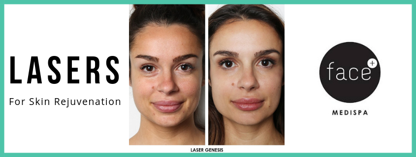 Laser Skin Treatments – Results you can see straight away