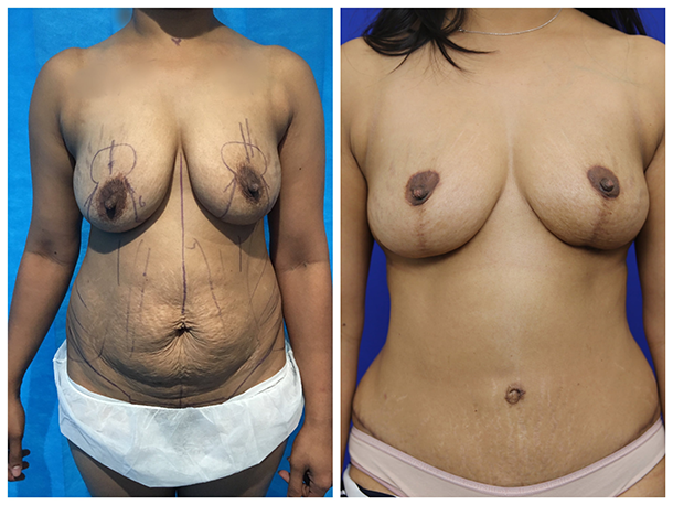 Lipoabdominoplasty with Breast Reduction