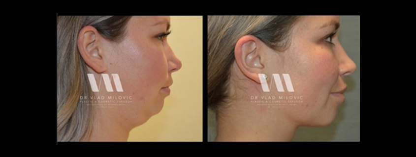 Defining your profile with neck liposculpture
