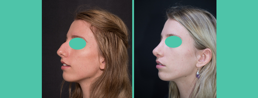 Rochelle's Rhinoplasty with Dr John Newton