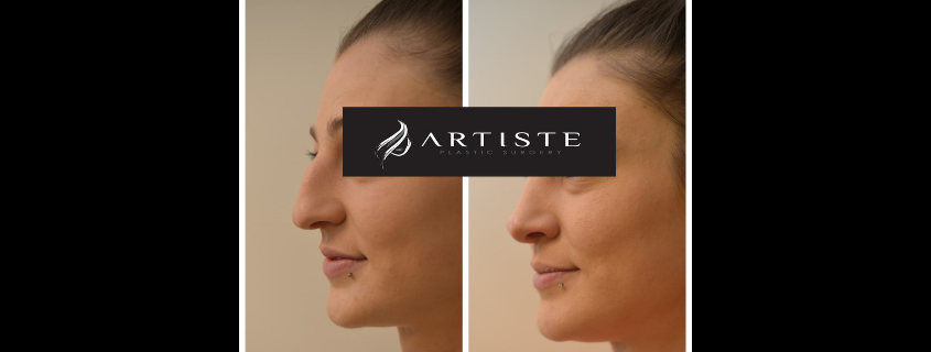 Rhinoplasty with Dr Jack Zoumaras at Artiste Plastic Surgery