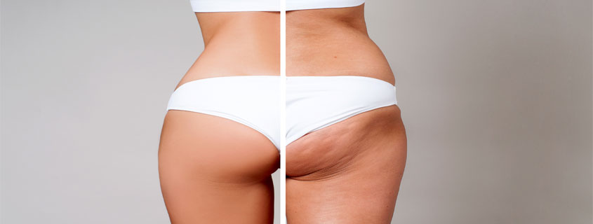 How Safe are Brazilian Butt Lifts Really?