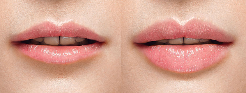 9 Things You Should Know Before Getting Lip Fillers