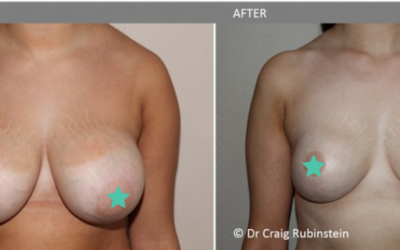 Does Medicare Cover Breast Reduction or Breast Lift Surgery?