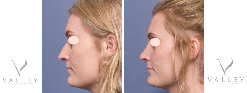 Rhinoplasty with Dr Raymond Goh