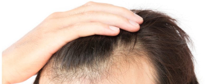 4 Effective Ways to Stimulate Hair Growth
