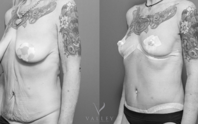 Yvonne's Massive Weight Loss and Transformative Procedures with Dr Matthew Peters