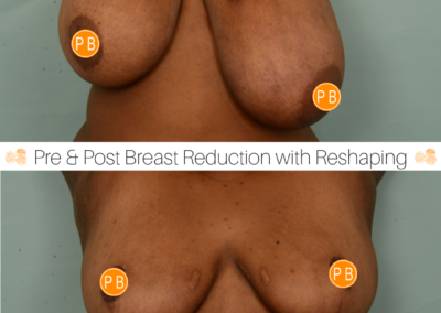 Breast Reduction Perth