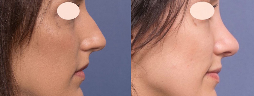 Rhinoplasty in Brisbane, with Dr Raymond Goh from Valley Plastic Surgery