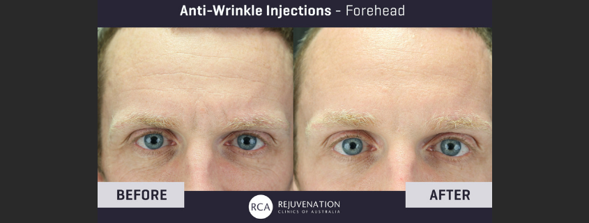 Anti-Wrinkle Injectables – What's the difference between them and how do they work?